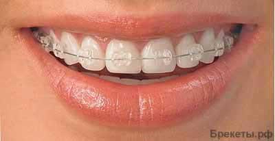 Ортодонт Николаева,брекеты,врач ортодонт,ортодонт