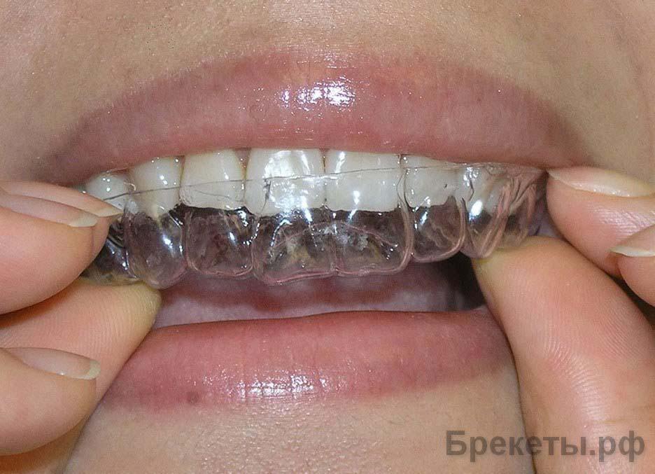 Чёрная полоска на зубе