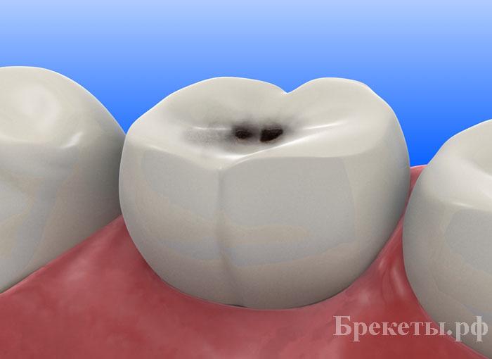 Лечение одного зуба сколько стоит владивостоке